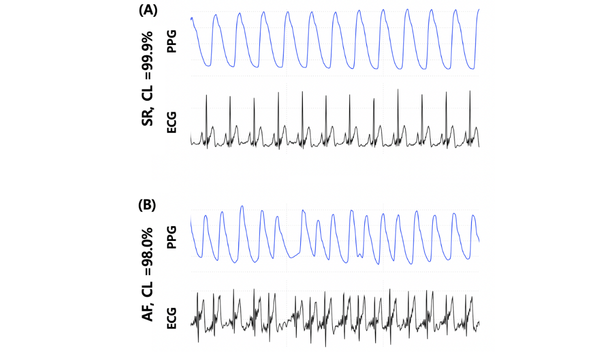 JMU - Deep Learning Approaches to Detect Atrial Fibrillation Using