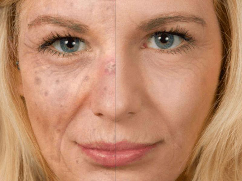 JMU - A Skin Cancer Prevention Facial-Aging Mobile App for